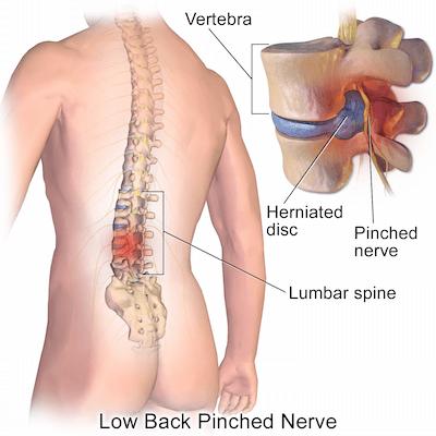 DW Osteopathy - Back Pain | Chepstow & Cardiff Osteopath | DW